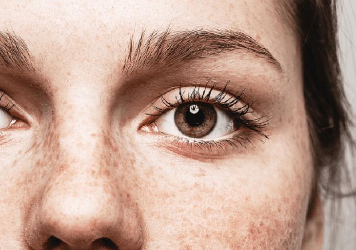 Mladá žena s pehami na tvári